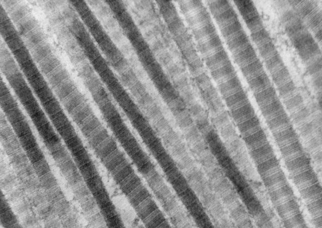 A highly detailed electron microscope image of collagen fibers found in the lung.