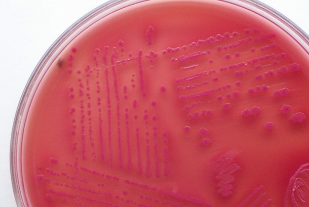 This photo shows colonies of microorganisms forming on an agar plate petri dish.