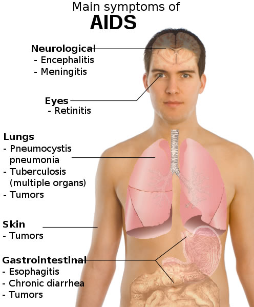 Aids Symptoms Diagram - Free Health & Medical Pictures, Photos ...