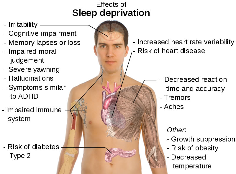 This diagram shows the main health effects of sleep deprivation listed next to a human body. Some of the effects include irritability, memory lapses, tremors, decreased reaction time and an impaired immune system.