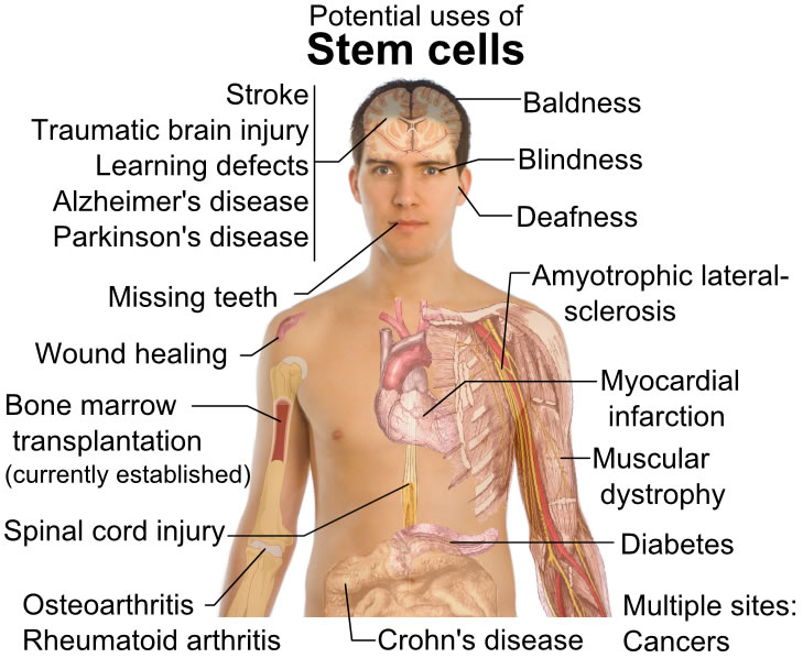 This diagram features the potential uses of stem cells. While it is a topic of great debate, stem cells offer potential uses for conditions such as blindness, Parkinson's disease, diabetes, strokes, deafness, spinal cord injuries, cancers and bone marrow transplants.