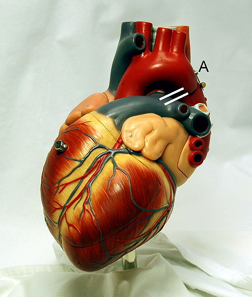 This photo shows a heart model on display. The position of a  ductus arteriosus is drawn between the aorta and pulmonary artery.
