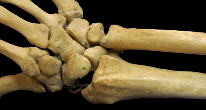 This photo shows a close up view of the radius and ulna bones that  make up part of the human arm and the overall human skeleton.